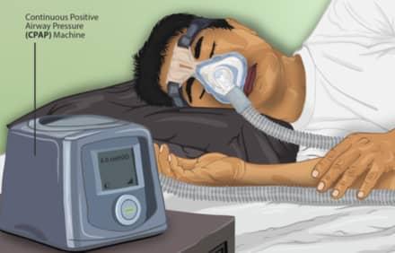 cpap-machine-sleep-aponea
